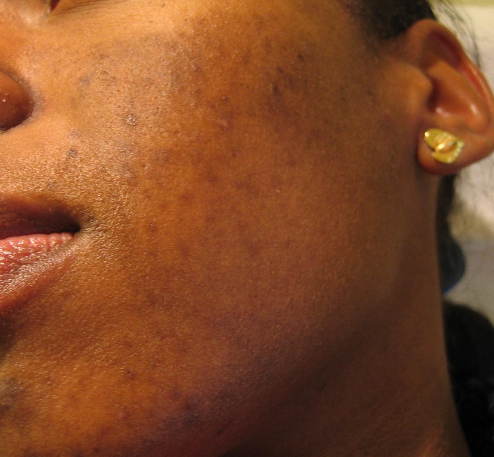taches acné peau noire