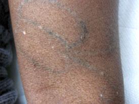 La lotion la tache de rousseur pour le blanchiment de la peau les rappels